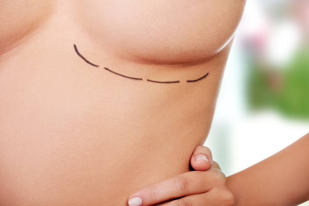 Study Finds Contralateral Prophylactic Mastectomy Only Adds Marginal Life Expectancy Benefit For Breast Cancer Patients