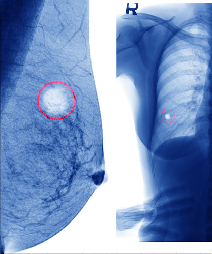 Radiation Therapy Not Found To Increase Lymphedema Risk in Node-Negative Breast Cancer, According To Patient-Reported Data