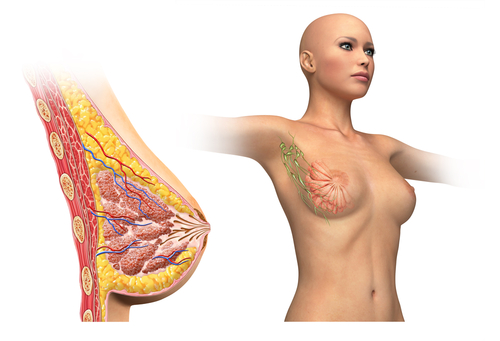 Breast Cancer Cells Promote Metastasis Through Lymphatic Cells