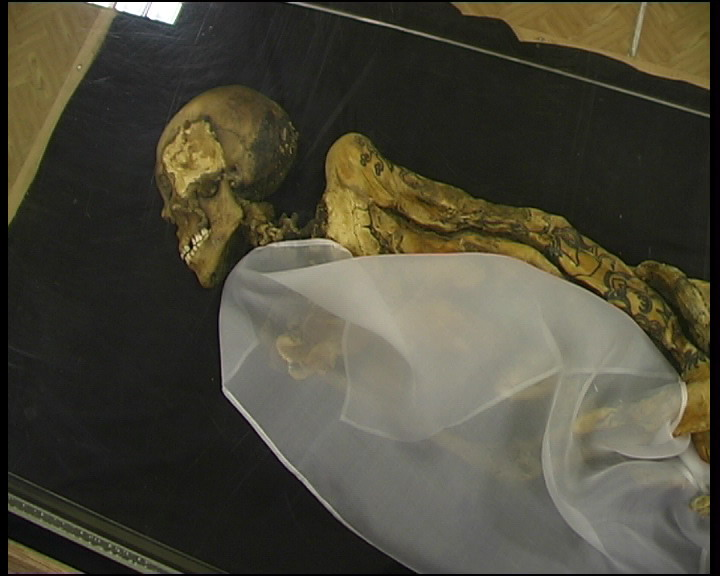 Breast Cancer Found In 2,500-Year-Old Mummified Siberian Princess