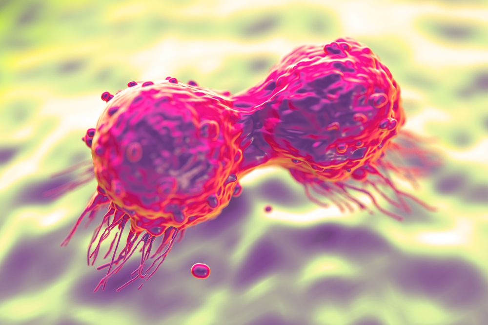 Pfizer's Palbociclib Granted FDA Priority Review For ER+ Breast Cancer Treatment
