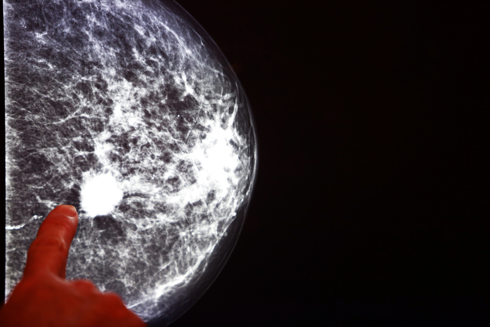 Breast Tissue Stiffness Is Related To Breast Cancer Risk