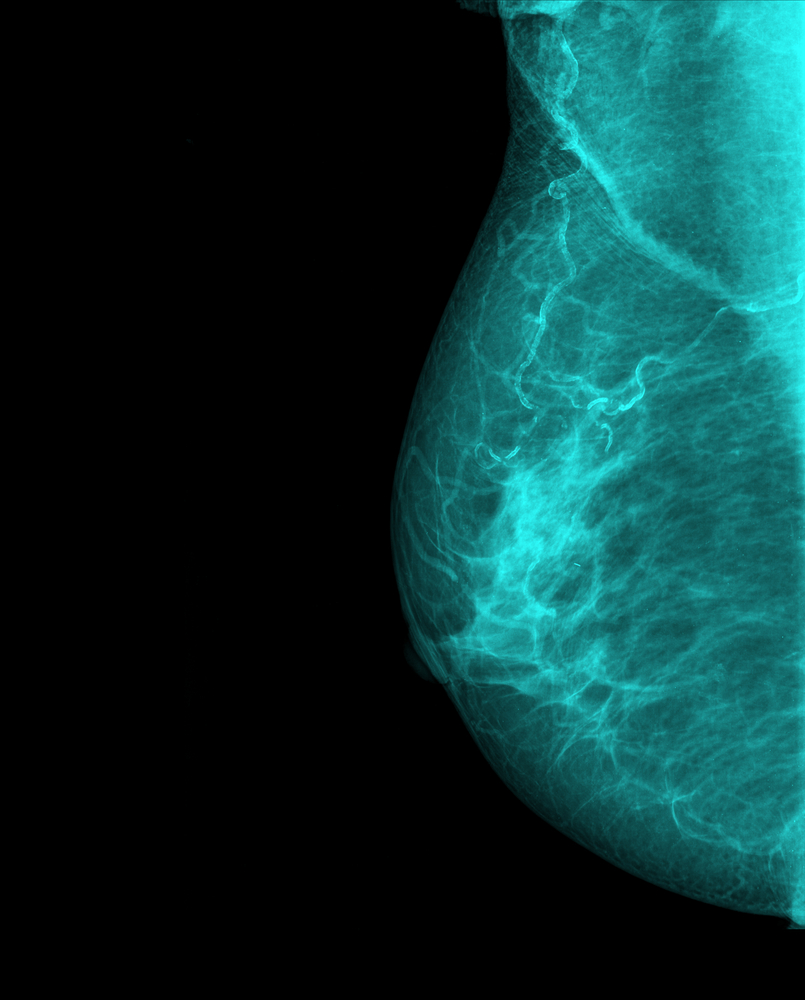 Molecular Breast Imaging In Women With Dense Breast Tissue
