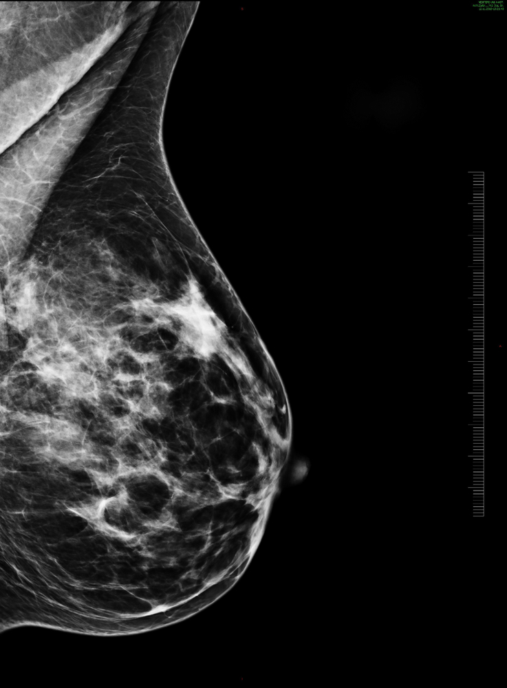 Lymphoseek Now Approved for SLN Mapping in Breast Cancer