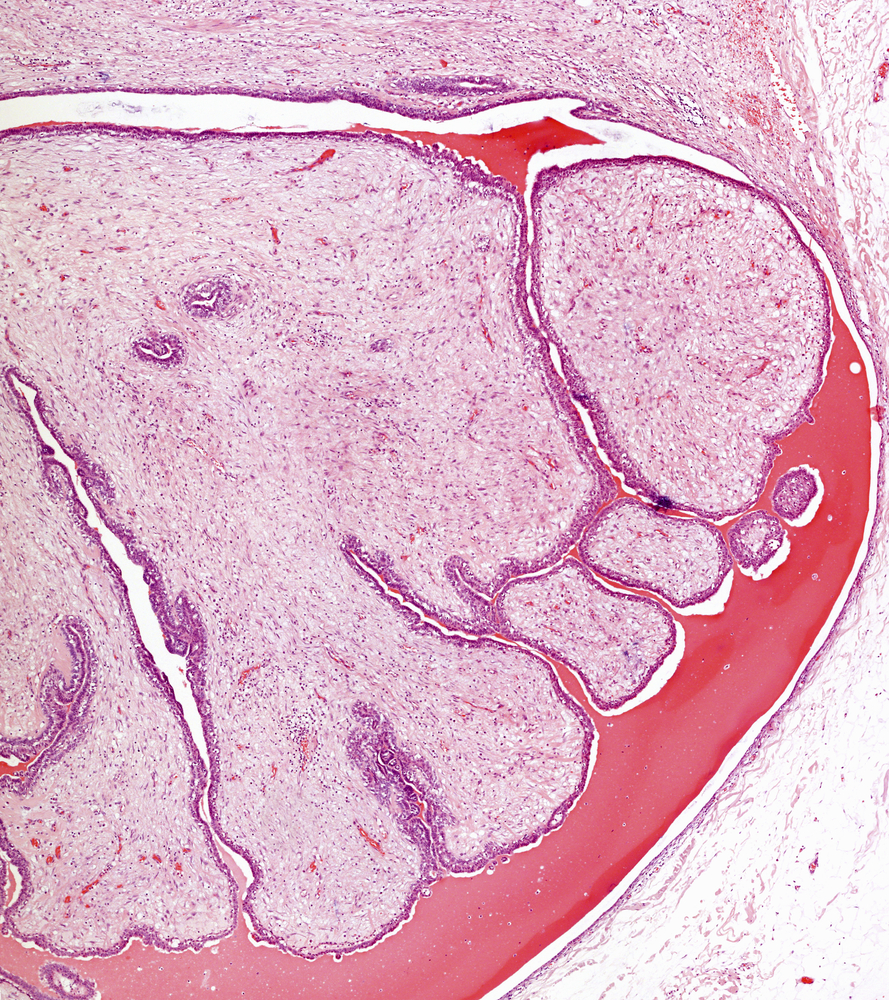 New, More Useful Way to Study Immortalized Mammary Cells Developed at Berkeley Laboratory