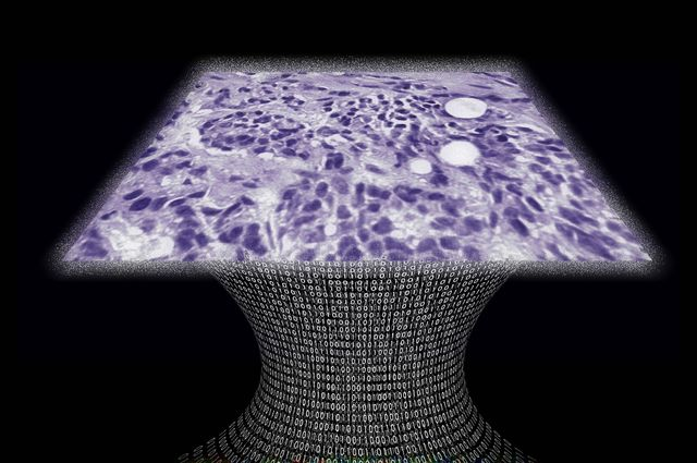 UCLA Laboratory Detects Breast Cancer with Novel Lens-Free Microscope