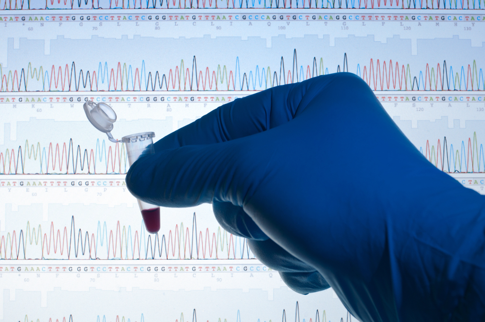 Researchers Discover Key Gene Involved In Breast Cancer Progression