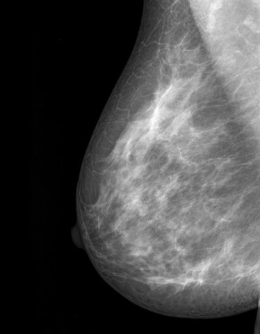 Nipple-Sparing Mastectomies Are Safe for Women at High Risk of Breast Cancer, Study Reports