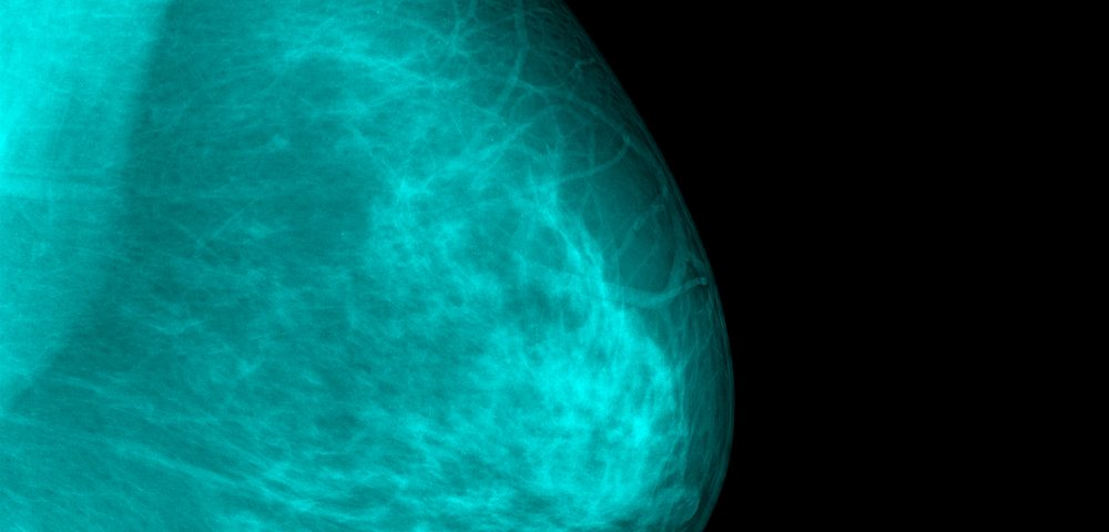 Surgeries in Earliest Breast Cancers May Soon Be Bit Easier