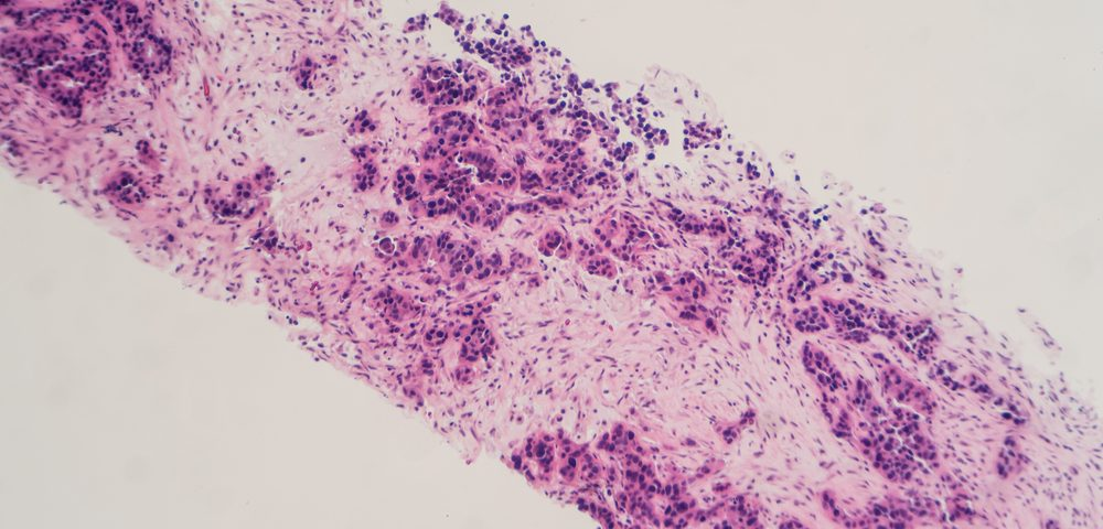 Pathologists Say Certain Tests for Noninvasive Breast Cancer Patients Waste Millions