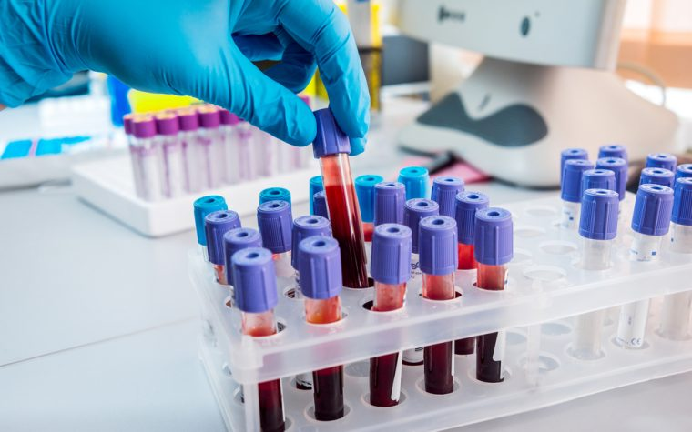 blood test to detect breast cancer