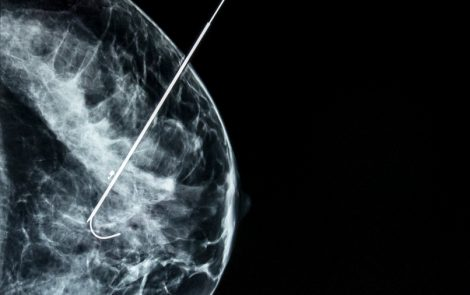 Blocking Breast Cancer Cell Energy Pathways Could Help Fight Disease, Study Finds