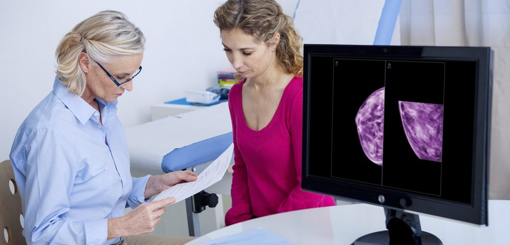One-Third of Breast Cancer Patients in US Not Given Mammograms in Year After Treatment