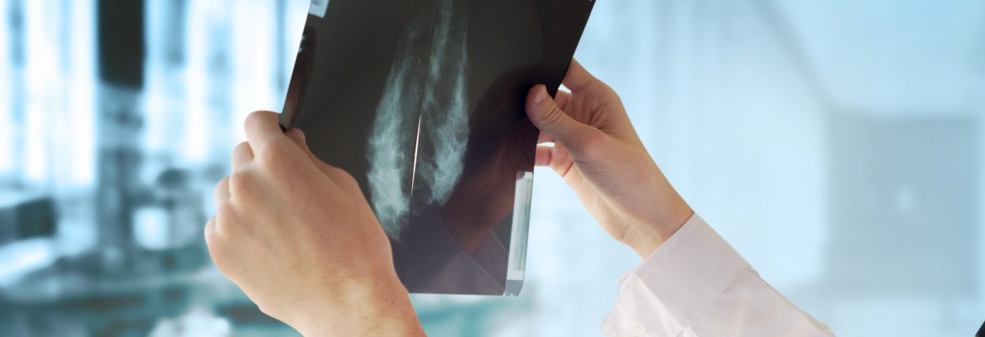 Breast Cancer Screenings Could Be More Effective and Less Painful, Thesis Argues