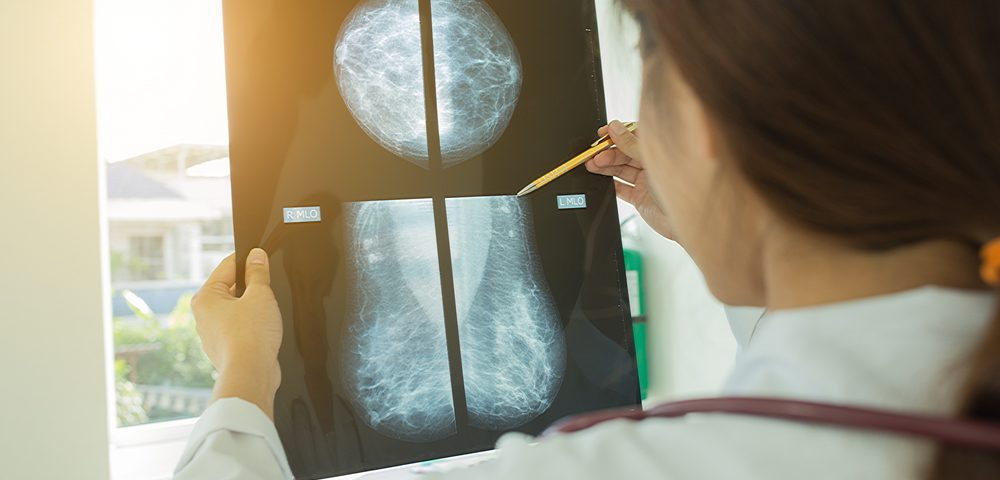 Mammography More Likely to Lead to Excessive Treatment Than to Save Lives, Study Suggests