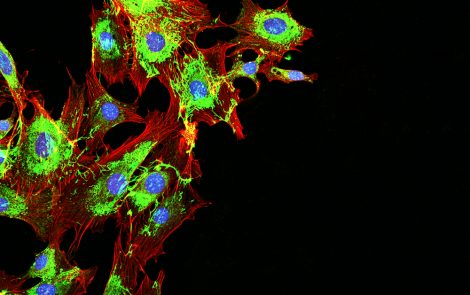 High Levels of Protein, Mena, Linked to Taxol Resistance in Breast Cancer Patients