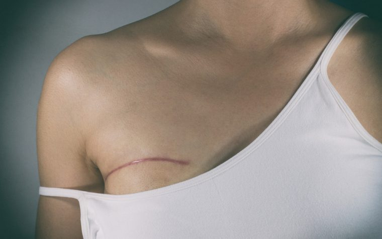 Mastectomy was inevitable, but single or double was a choice