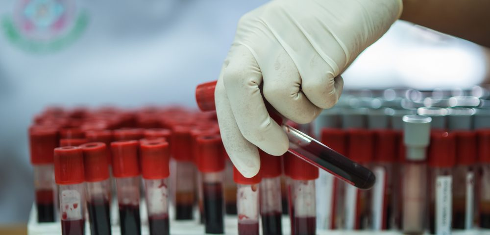 Updated ClearID Blood Test Aids Doctors in Monitoring Patient Response to Therapy
