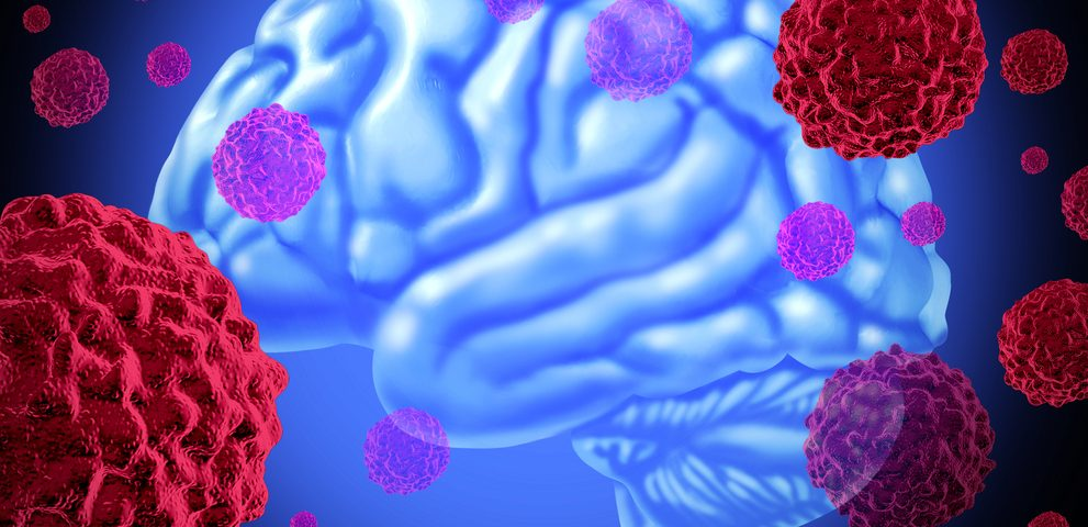 Breast Cancer Cells Disguise Themselves as 'Friends' to Enter Brain, Study Finds