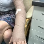 compression bandages for lymphedema