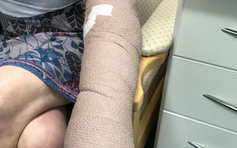 Lymphedema and LVA Surgery that Is Bringing New Hope