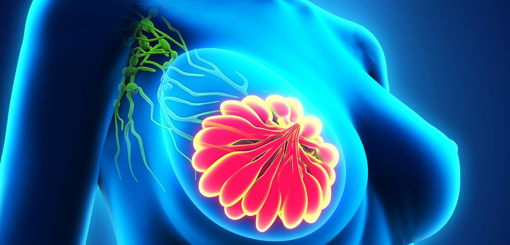 Even Small Breast Tumors Can be Aggressive, and Patients Can Benefit from Chemotherapy, Study Shows