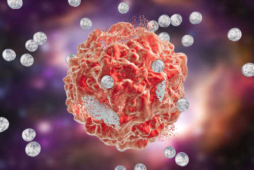 Researchers Develop New Strategy to Target Breast Cancer Metastasis in Bones